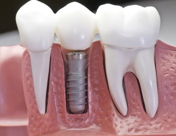 Dental implants are the next best thing to natural teeth